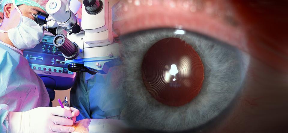 Multifokal göz içi lensi