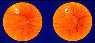retina-yirtiginda-laser-tedavisi